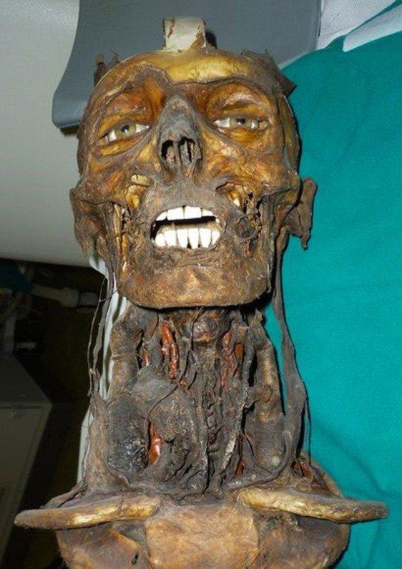 The Secret Inside the Skull of the 19th Century Mummy -4