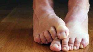 Identify Lung Cancer With the Help of Your Toe nails
