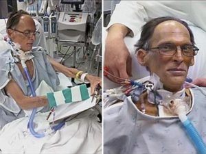 The Man Who Spent Five Weeks Without Heart