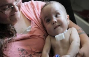 Newborn Survives Thanks to 3D-Printed Splint 1